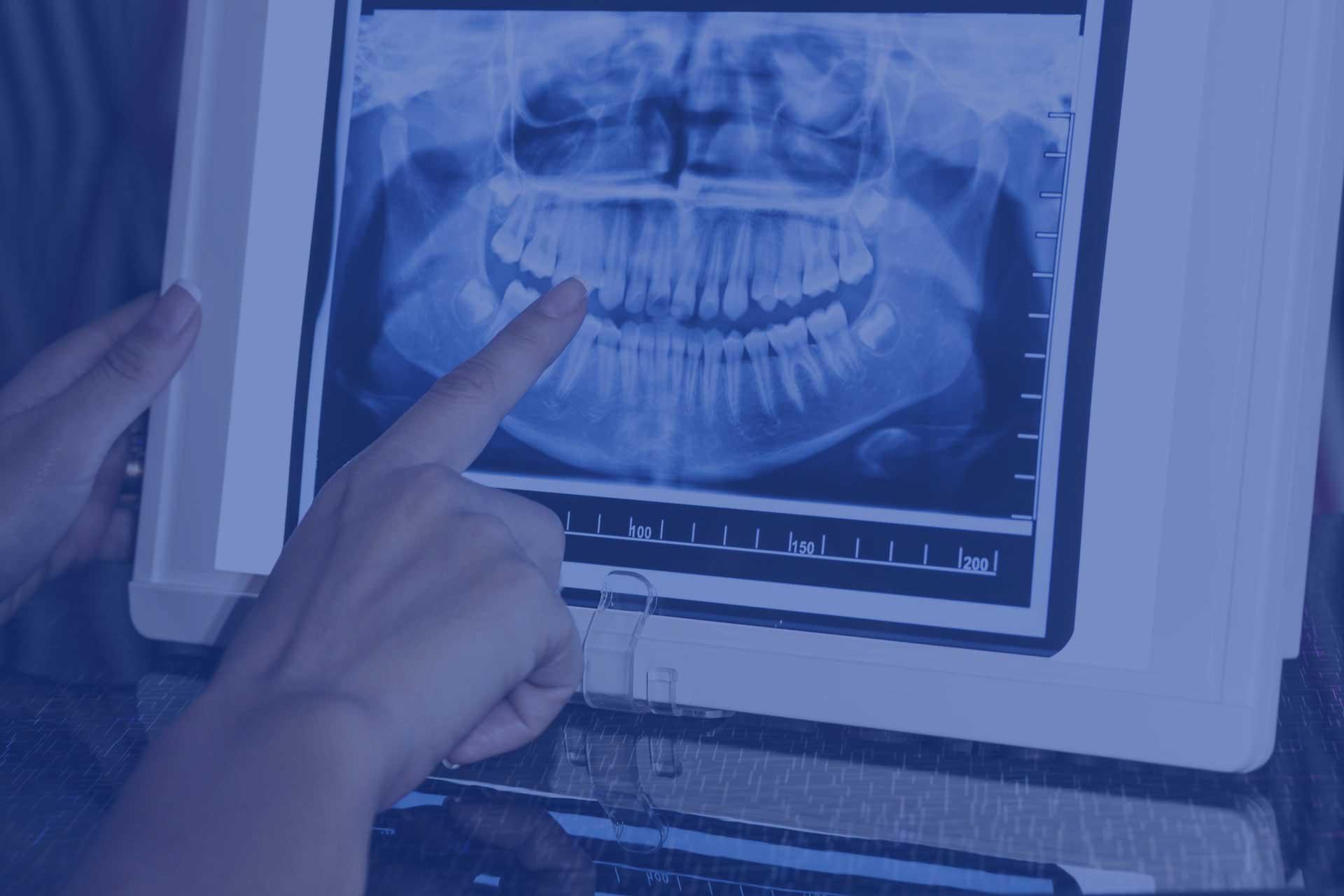 rx dental refertazione odontoiatrica online